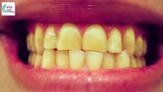 5 நிமிடத்தில் வீட்டிலேயே பற்களை வெள்ளை ஆக்குங்கள் | Magical Teeth Whitening Remedy