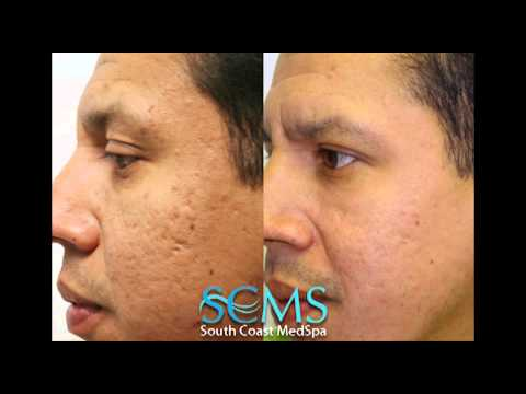 Laser Acne Scar Removal- Before/After Hispanic Male
