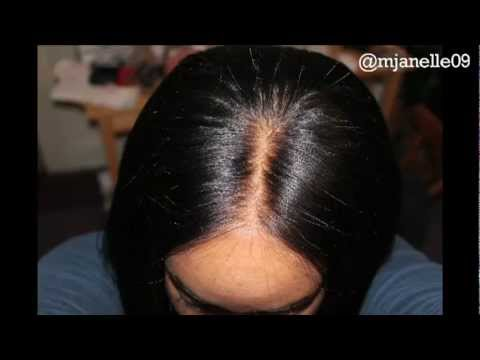 How to: Realistic Lace Closure - YouTube