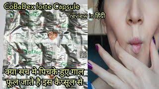 CoBaDex Forte Capsule पिचके हुए गाल को फुलाने के लिए | Vitamin B12, vitamin B-complex ,Vitamin C