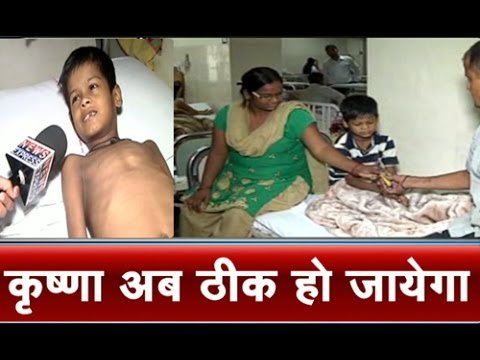 News Express Effect: Ganga Ram Hospital Offers Free Treatment To Delhi Boy video