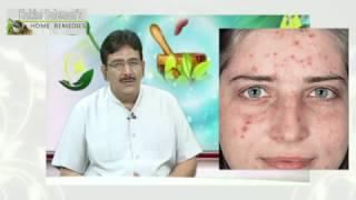 Cure Skin Problems with Baking Soda - Hakim Suleman Khan (खाने वाले सोडा से दूर करें चर्म रोग)