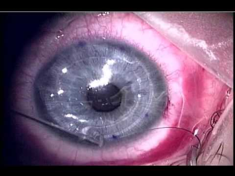 Penetrating Keratoplasty