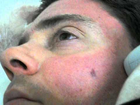 La fotografia nota sulla medicina di faccia