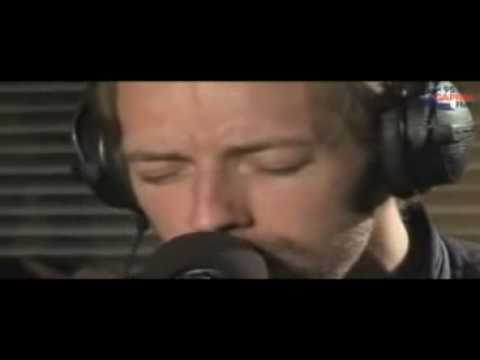 Coldplay - Viva la Vida (Acoustic) Live on Xfm Music Videos