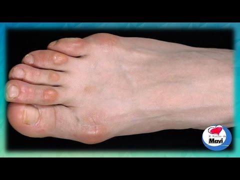 Como quitar los callos de los dedos de los pies Callos en los pies tratamientos naturales