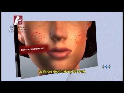 Relleno Facial Ácido Hialurónico   Corporación de Cirujanos Plásticos   Lima - Perú