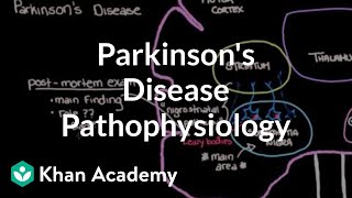 Putting it all together - Pathophysiology of Parkinson's disease | NCLEX-RN | Khan Academy