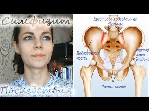 У кого болит лобковая кость при беременности