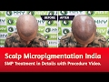 Scalp Micropigmentation India – SMP Treatment in Details with Procedure Video.