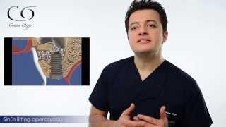 Sinus Lifting nasıl yapılır? Diş Hekimi Cansın Özgür anlatıyor...