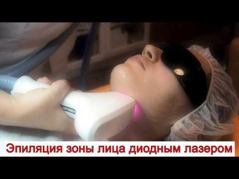 Эпиляция зоны лица диодным лазером | Больше никаких вросших волос и черных точек после бритья!