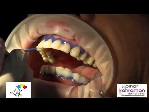 Lazer ile diş beyazlatma