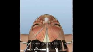 Endoskopik Alın Germe Ameliyatı, Op. Dr. Nazmi Bayçın