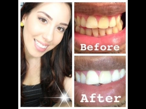 How to whiten EXTREMELY yellow teeth at home with actual pictures