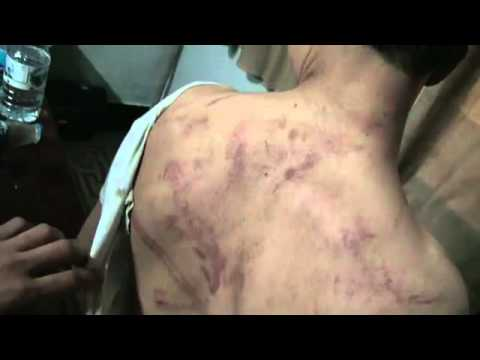 Syria, among others young protester was detained and tortured [Eng Sub]