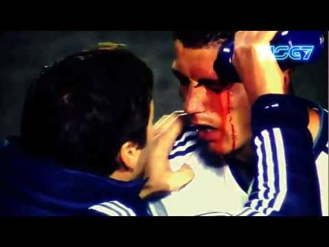 Cristiano Ronaldo - Real Madrid vs Levante | Eye injury 11-11-2012 | HD