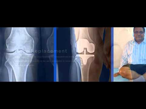 Chirayu Hospital For Joints Replacement In Ahmedabad