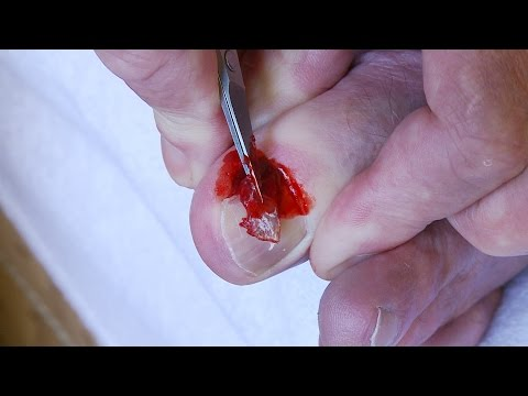 How to remove an ingrown toe nail
