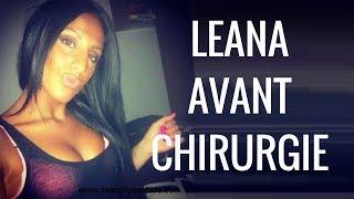 LEANA [ LES ANGES ] - AVANT CHIRURGIE !