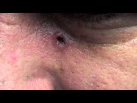 Dermatologist Eatonton, Skin Cancer Evans, Acne, Tanning, Moles, Skin Problems, Martinez, Augusta