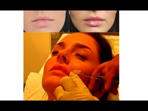 Lip Augmentation VLOG: My Injection Experience