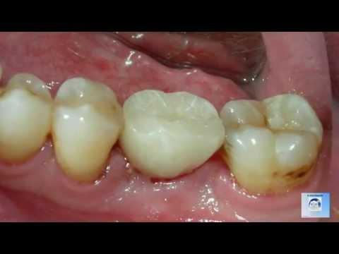 Los Angeles Dental Implants -s
