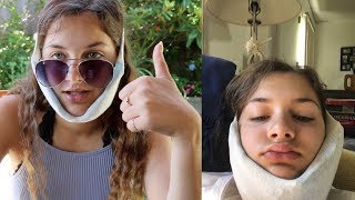 i got my wisdom teeth removed