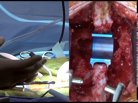 Coflex Surgery for Spinal Stenosis