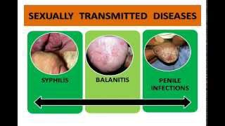 Penis Infections ,STD's, STI,  Syphilis, Herpes, Gonorrhoea -  Best  Ayurvedic treatment in India