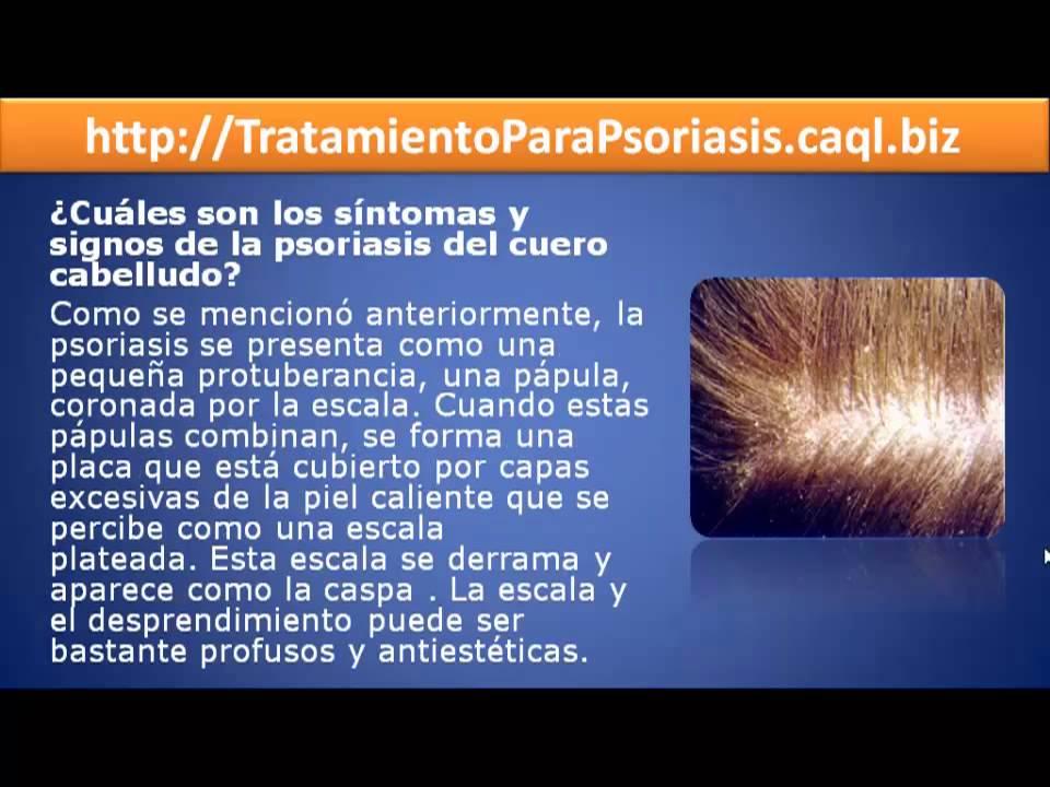 La transmisión sobre la psoriasis