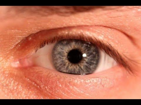 Choroby Siatkówki Oka - OKO BEZ TAJEMNIC Odcinek 6