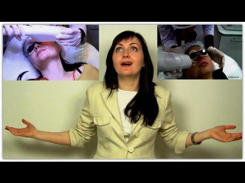 Удаление сосудов на лице / Коагуляция лазером / Впечатления