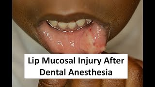 Lip Mucosal Trauma after Dental Anesthesia