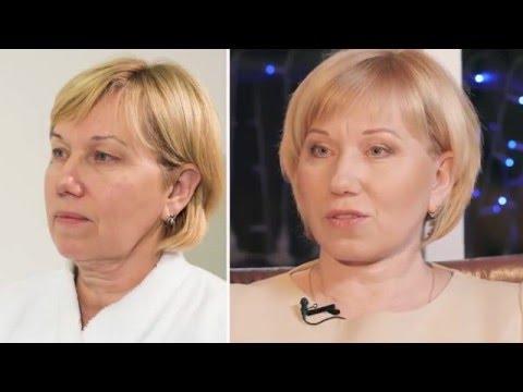 Кузьмина Марина - отзыв об операции подтяжки лица методикой Space Lifting!