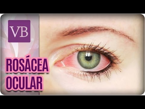 Rosácea Ocular – Você Bonita (18/10/16)