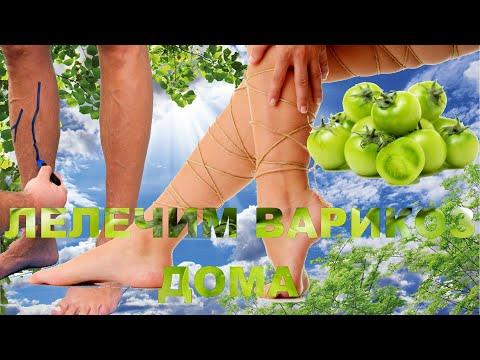Внутренний варикоз лечить в домашних условиях