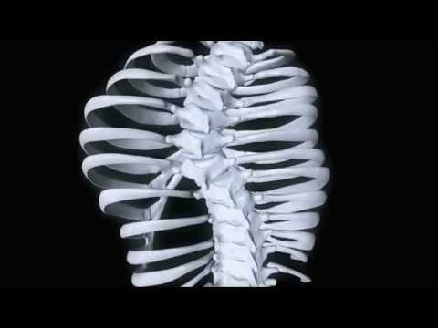 Korsettversorgung Chêneau und Chêneau-Light - Scoliocare Orthomed
