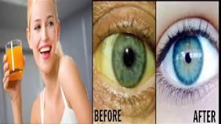 yellow eyes/how to whiten the whitesof your eyes/dull yellow eyes/ankhon ki pilahet c nijat