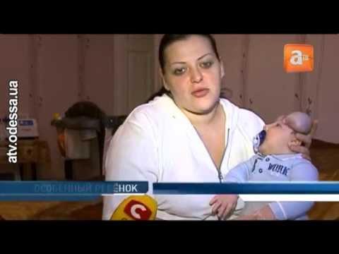 В  Одессе живёт единственный в мире малыш без черепа