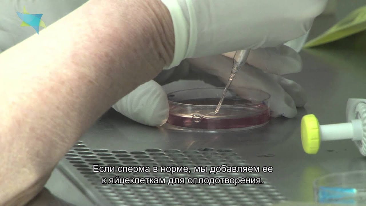 Эко с донорской спермой отзывы