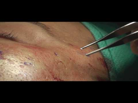 Acne Scar Revision Part 01 Introduction by Dr. Young