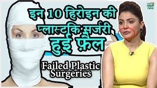 10 Bollywood Celebrities Plastic Surgery GONE Terribly Wrong | हिंदी