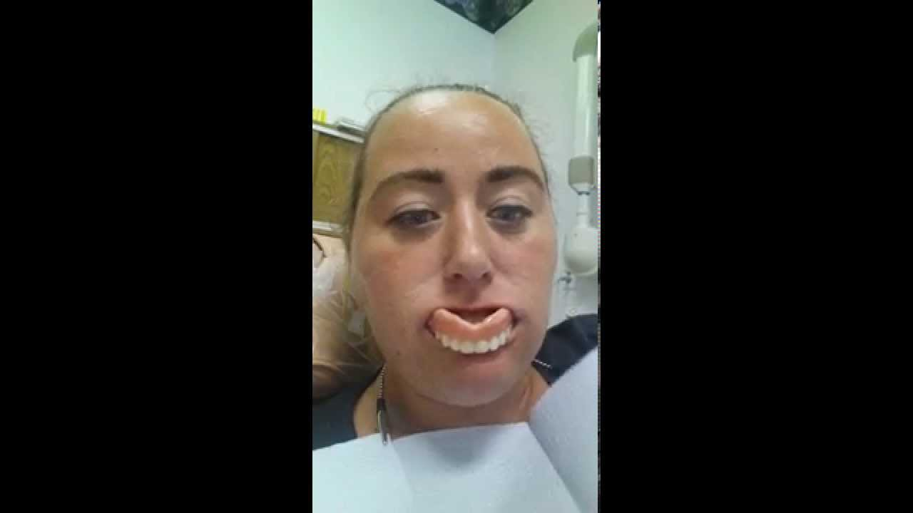 Denture fail very funny Very Funny Image