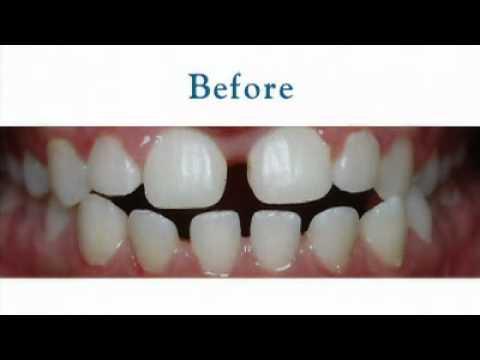 Mesa, AZ Invisalign Teen Clear Braces Elite Provider Robison Orthodontics