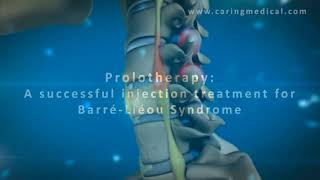 3D animation demonstrating Prolotherapy for Barré-Liéou Syndrome