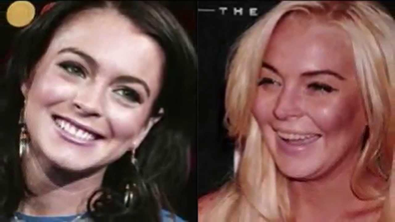 Drug Addict celebrities before and after - YouTube