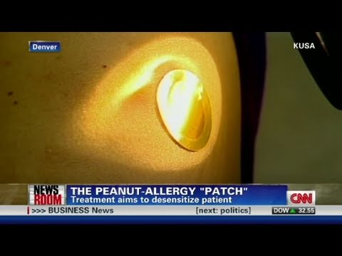 Peanut allergy 'patch'?
