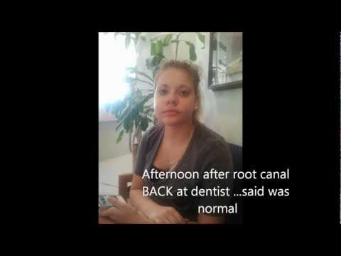 Root Canal gone wrong!