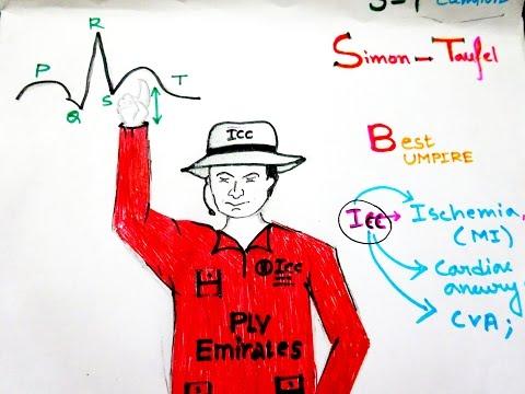 VISUAL Mnemonic for All the Conditions Having S-T Segment Elevation on EKG Machine Or EKG Monitor
